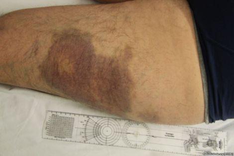 З'явилися фотографії жахливих ран Булатова після катувань